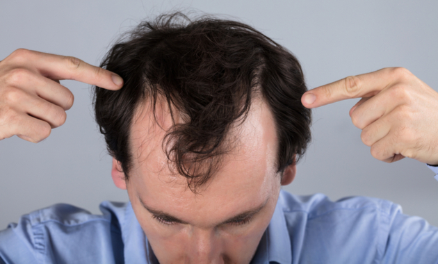 Hair Loss Supplement